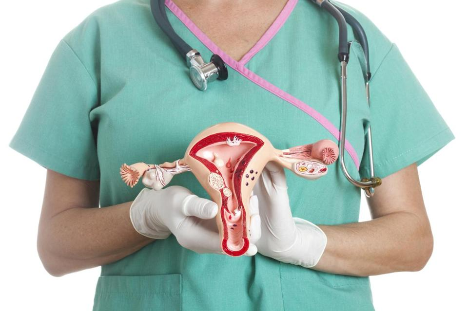 Ovarian cancer refers to any cancerous growth that begins in the ovary.