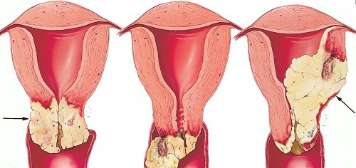 How Do You Know If You Have Cervical Cancer?